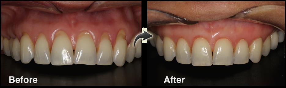 Chao Pinhole Gum Surgery Kootenay Smile Studio